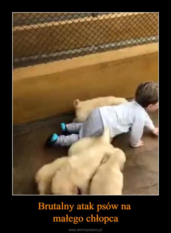 Brutalny atak psów na małego chłopca –