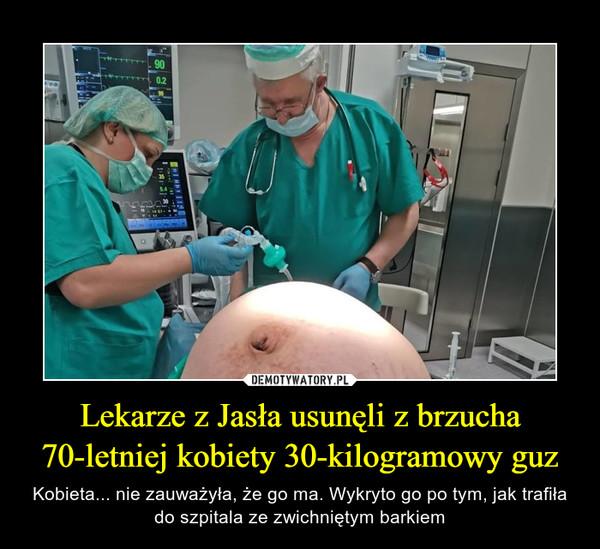Lekarze z Jasła usunęli z brzucha 70-letniej kobiety 30-kilogramowy guz – Kobieta... nie zauważyła, że go ma. Wykryto go po tym, jak trafiła do szpitala ze zwichniętym barkiem